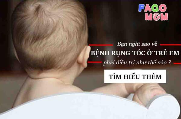 [Rụng tóc ở trẻ sơ sinh] - Nguyên nhân và 6+ cách điều trị