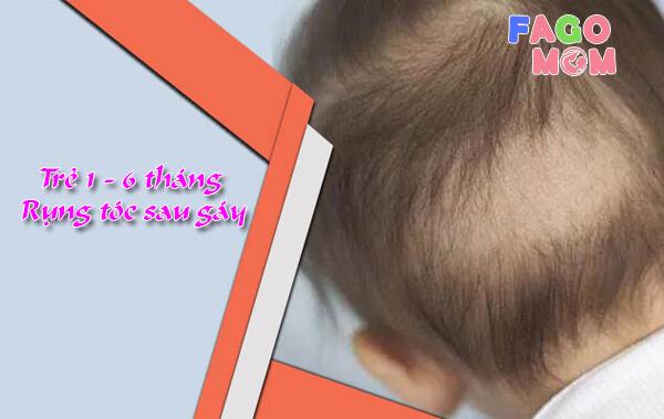 Trẻ 1-6 tháng rụng tóc sau gáy: Nguyên nhân và cách điều trị