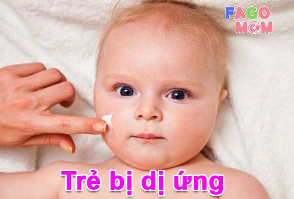 #9+ bệnh dị ứng hay gặp ở trẻ và cách điều trị từ chuyên gia