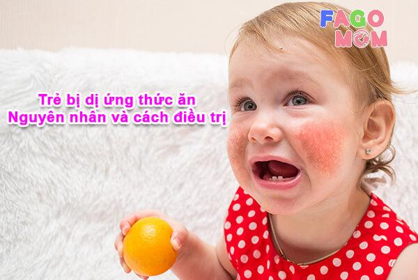 [Bố mẹ nên làm gì] Khi trẻ bị dị ứng thức ăn