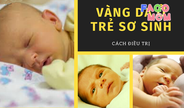[Phân biệt] Bệnh vàng da sinh lý và bệnh lý ở trẻ sơ sinh