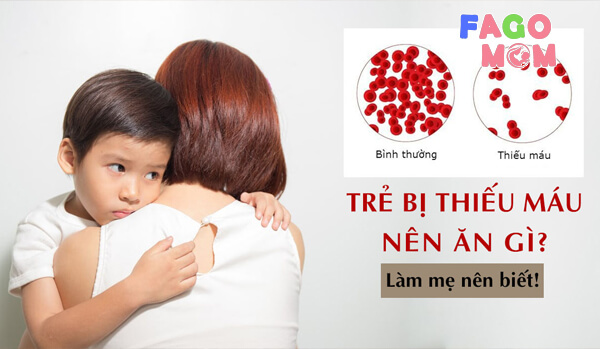 [Thực đơn] cho trẻ bị thiếu máu được bác sĩ khuyên dùng