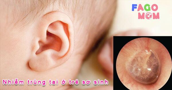 [Giải đáp từ bác sỹ] nhiễm trùng tai ở trẻ sơ sinh