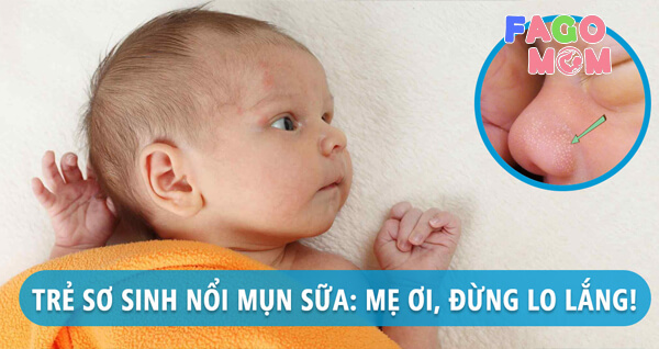 Mụn Sữa Ở Trẻ Sơ Sinh Có Nguy Hiểm Không? Cách Chữa Lành