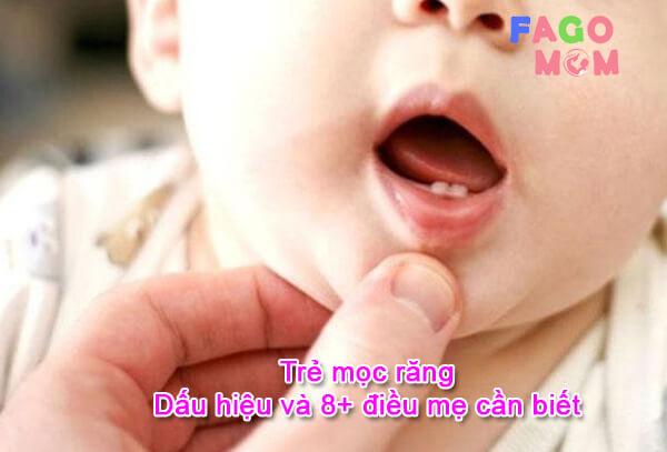 [Trẻ mọc răng] Dấu hiệu và 8+ điều mẹ cần biết