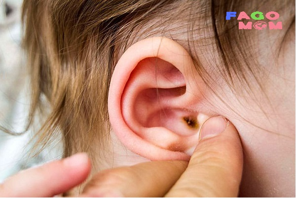 Viêm tai ngoài ở trẻ: Dấu hiệu nhận biết và cách điều trị