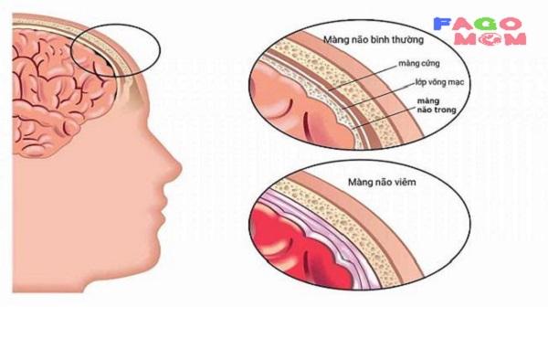 [Viêm màng não ở trẻ em] Nguyên nhân và dấu hiệu nhận biết
