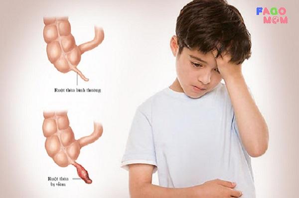 [Dấu hiệu nhận biết sớm] Viêm ruột thừa ở trẻ em