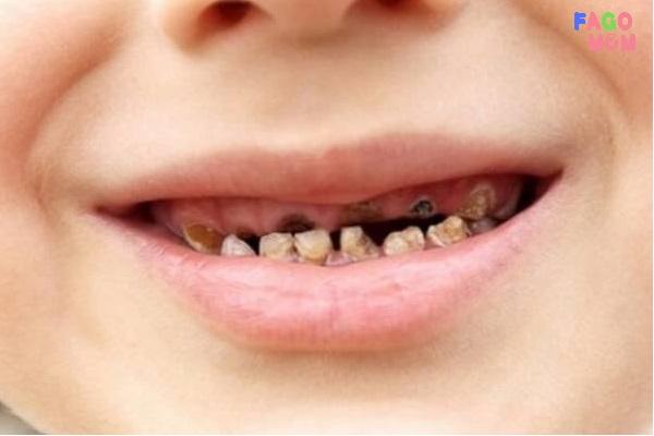 [Trẻ bị sún răng] Những điều bố mẹ cần biết